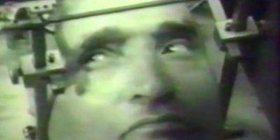 VIDEO Imagini din timpul unei operatii pe creier, realizata in 1973, la Timisoara. Pacientul era treaz si coopera cu medicii