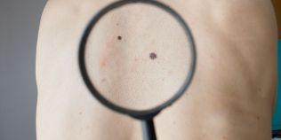 Cum au reusit medicii americani sa vindece un melanom metastazat in doar trei saptamani