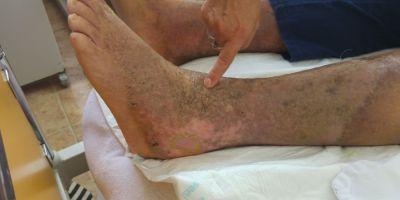 Concluziile DSP in cazul pacientului cu viermi in picior. Vicii grave de procedura la Spitalul Judetean de Urgenta din Targoviste