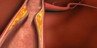 Scapa de colesterol cu aceste remedii naturale